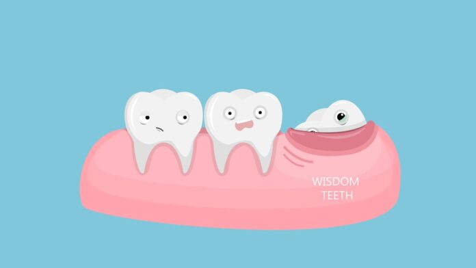 wisdom tooth extraction cost