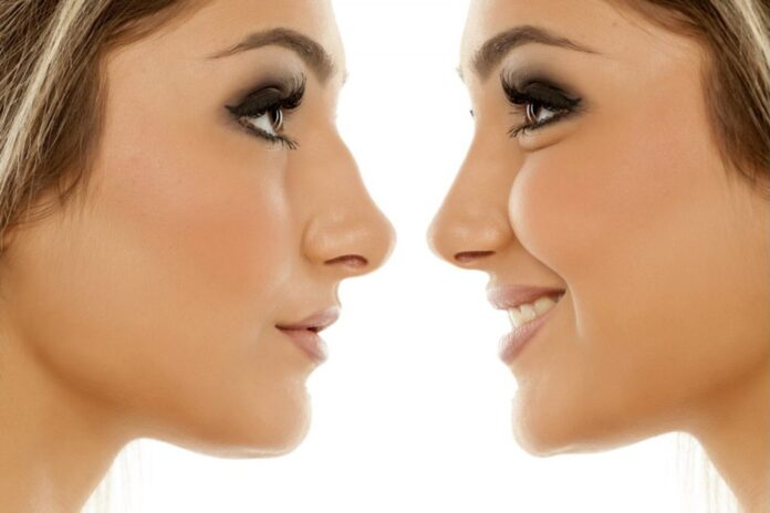 plastic surgery cost